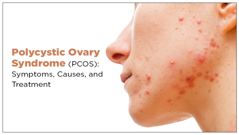 Polycystic Ovary Syndrome (PCOS): Symptoms, Causes, and Treatment